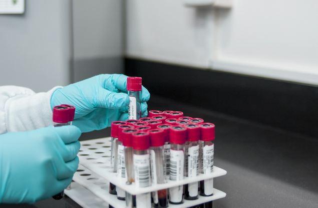 В Кировской области 78 новых случае коронавируса